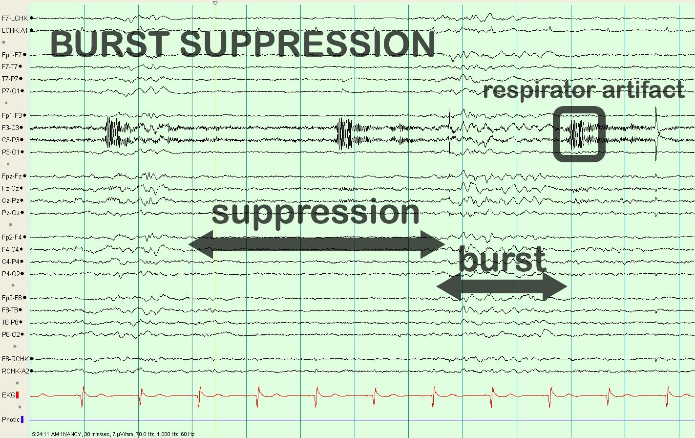 Image Result For Burst Suppression Pattern Pattern Math Ekg