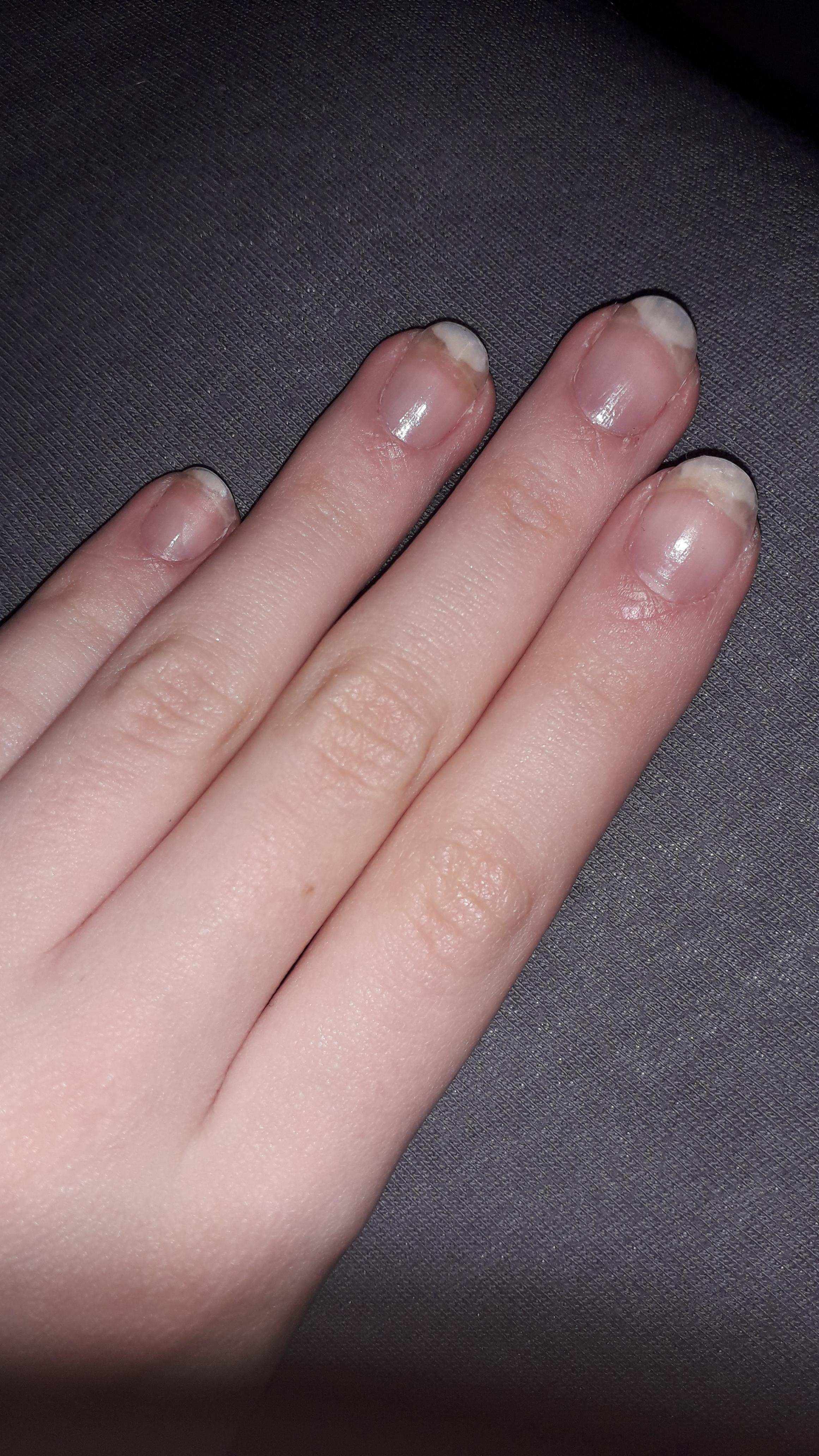 Milchig Weisse Flecken Auf Den Nageln Gesundheit Und Medizin Nagel Finger