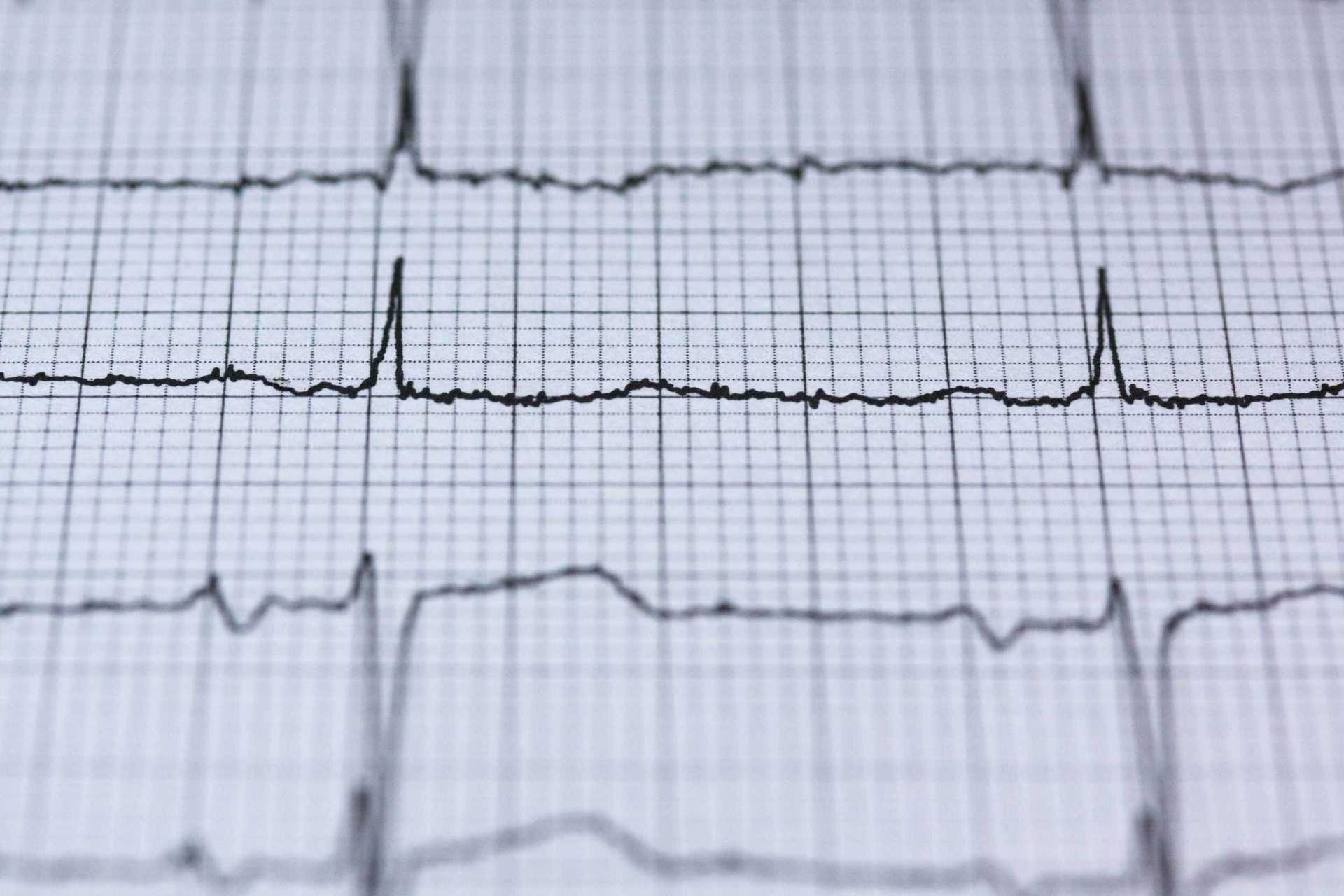 Vorsorgevollmacht Und Patientenverfugung In Osterreich Finad