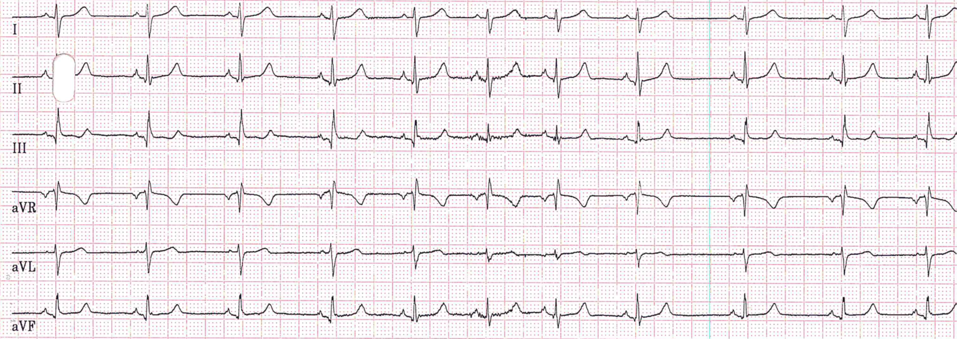 Herzrhythmus Fokus Ekg