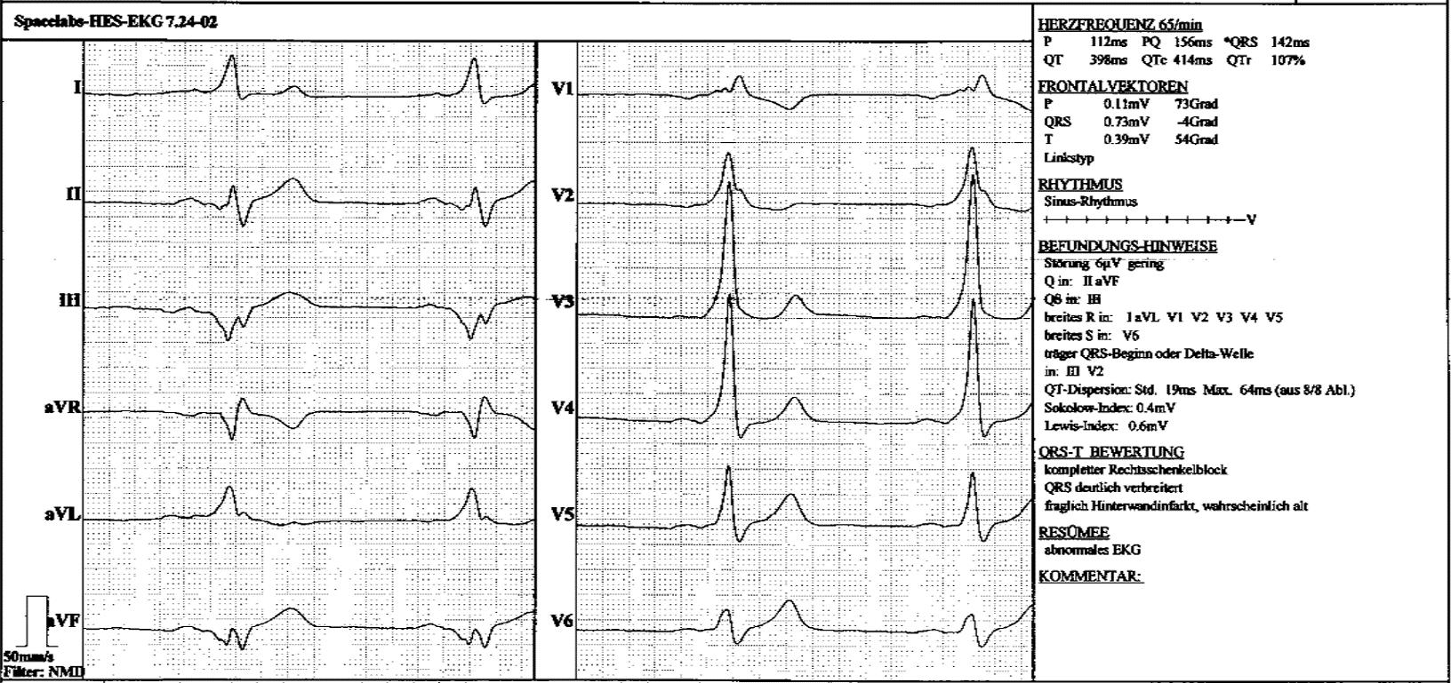 Av Reentry Tachykardie Und Ventrikulare Praexzitation Wpw Syndrom Fokus Ekg